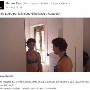 DISABILI: RENZI RILANCIA LA COCCIA, 'BELLO' E'SOGGETTIVO